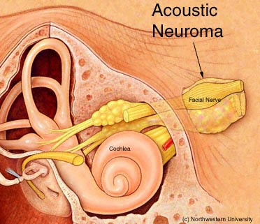 Acoustic20Neuroma1s2w